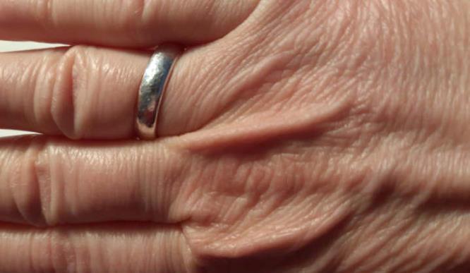 Der Ausschnitt eines Fotos mit einer Hand mit faltiger weißer Haut. Am Ringfringer ein silberner Ehering.